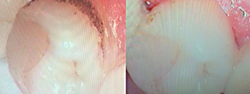 Problème de dents jaunes avec le tabac