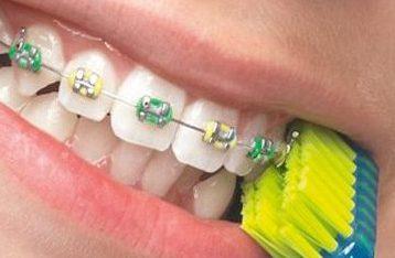 Brosse a dent appareil dentaire-dentapass