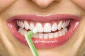 brosse a dent-dentapass-interdentaire