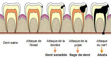 Rage de dent
